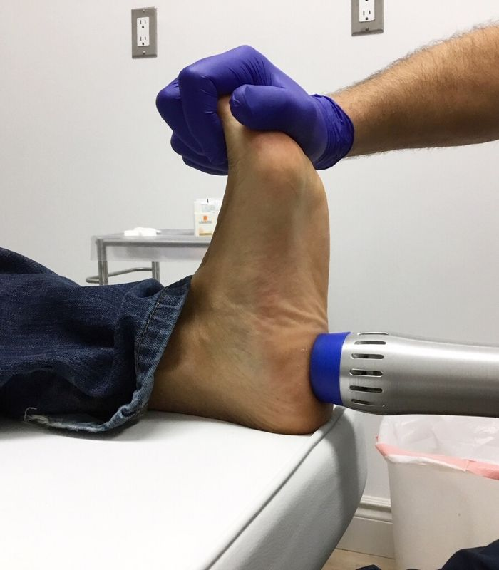 Shockwave Therapy Stoney Creek One Foot Clinic