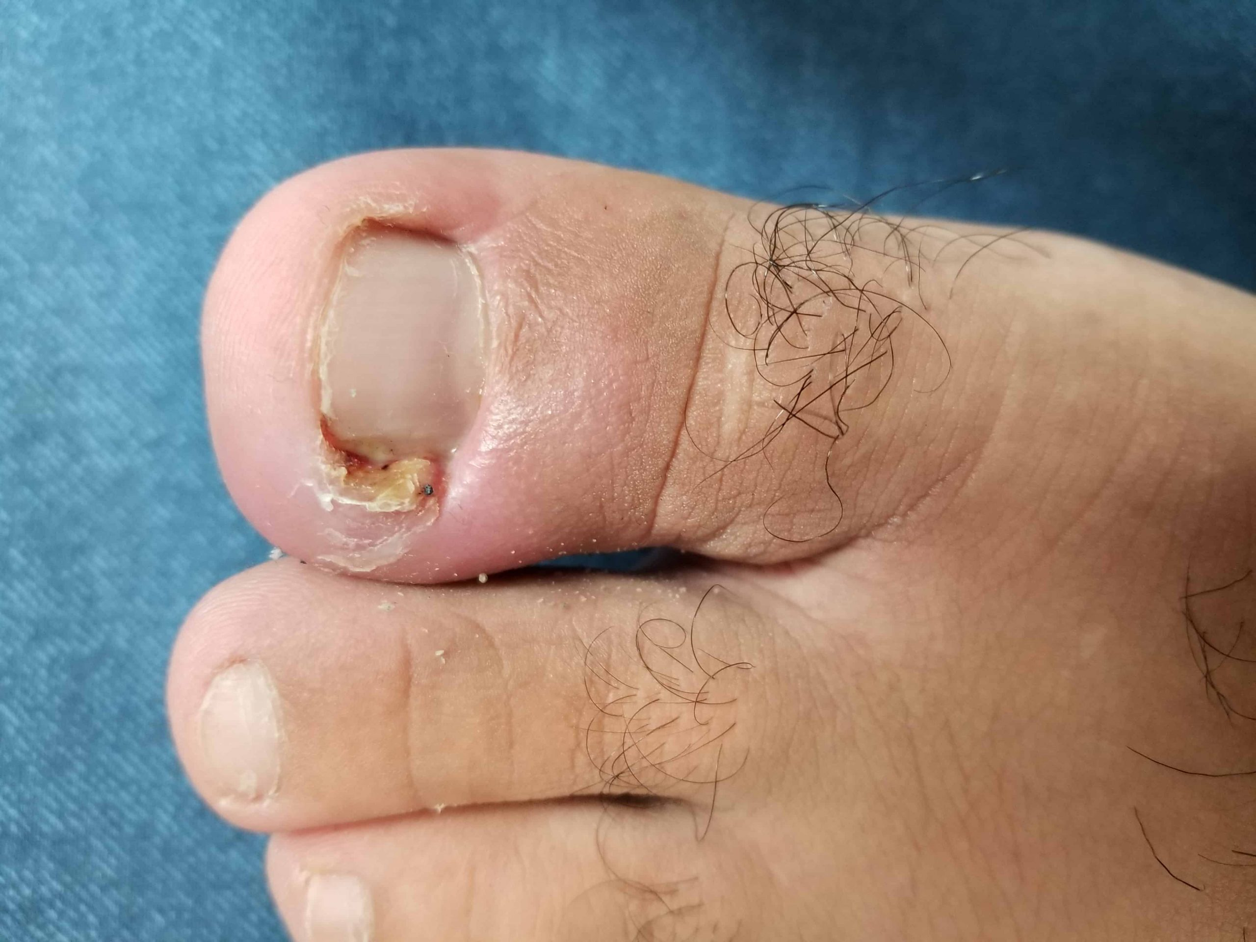 The One Foot Clinic Ingrown Toenails (1)